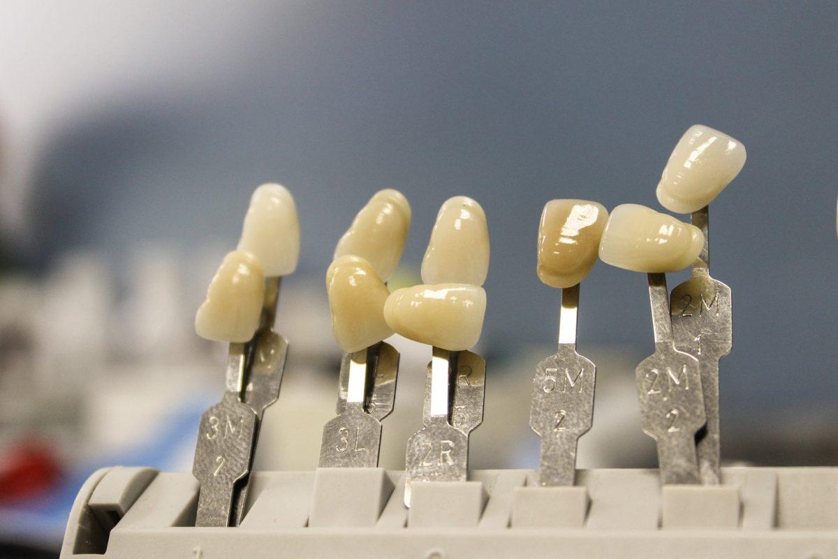 Prześliczne nienaganne zęby dodatkowo efektowny prześliczny uśmieszek to powód do dumy.