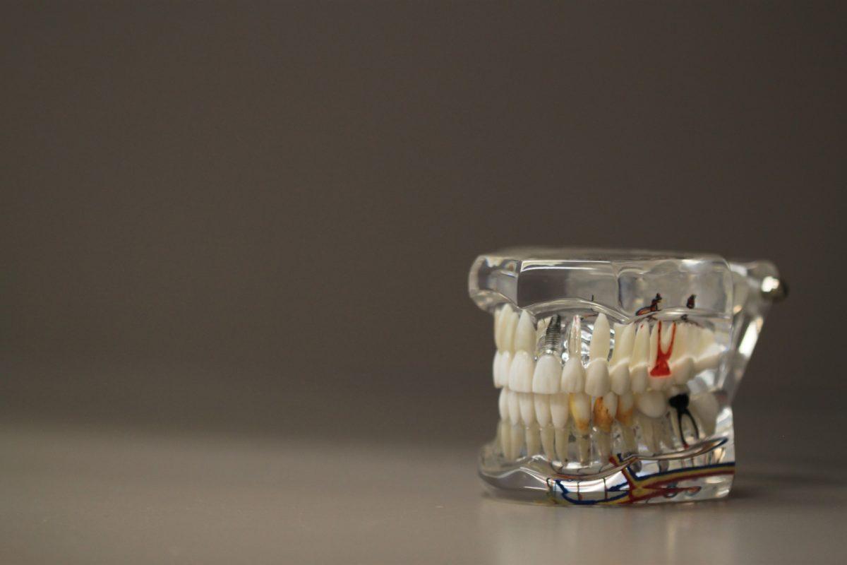 Zła sposób żywienia się to większe niedobory w jamie ustnej natomiast dodatkowo ich zgubę